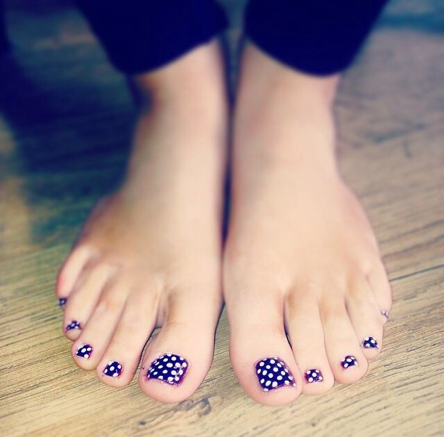 Purple polka dot toes! So effective & so easy to do!  by Evie at Tranquility spa Hornchurch, Essex c