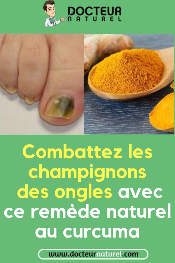 Combattez les champignons des ongles avec ce remède naturel au curcuma #application ...