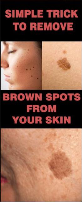 18d16ce1e2c3c7779ef8072098618e65 - How To Get Rid Of Allergy Marks On Legs
