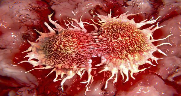 Prečo je toto ukryté pred verejnosťou: Top 10 príčin rakoviny ktoré využívamé denne!   Domáca Medicína