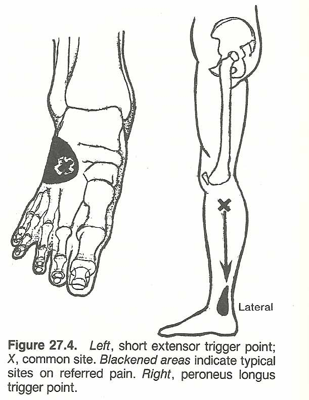 image result for trigger point in shin preventing proper