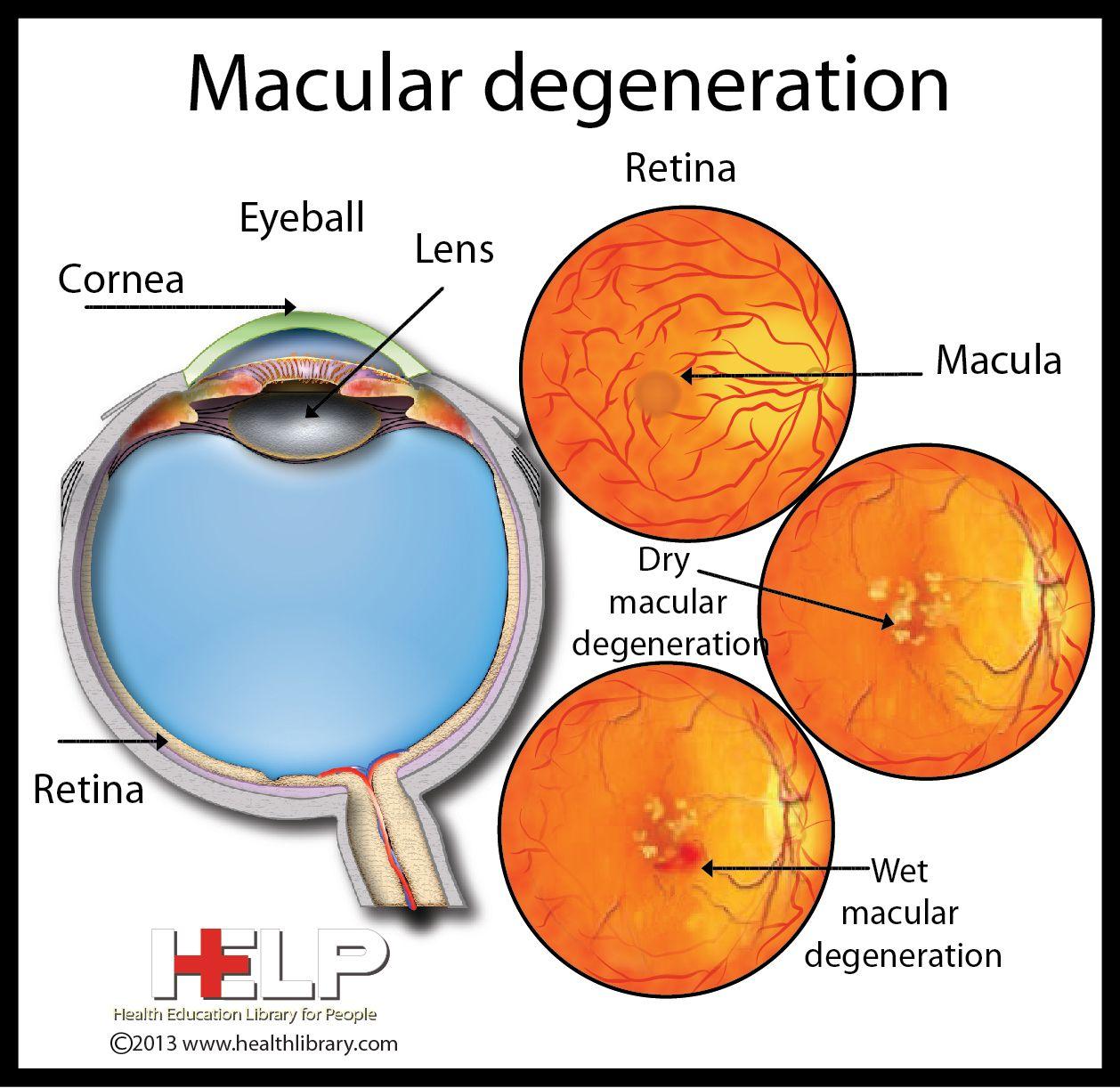 Macular Degeneration Eye Pinterest Optometry Eye Facts And