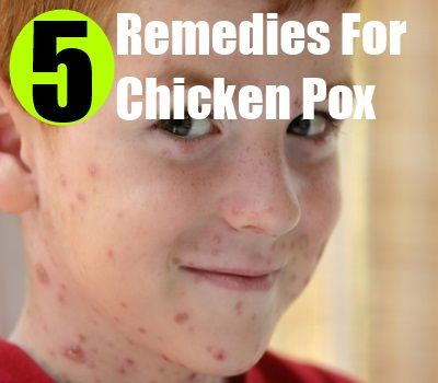 Few Effective Ways To Cure Chicken Pox
