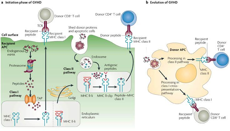 Graft-versus-host disease is a challenging, & life-threatening condition occurring when the newly transplanted cells identify & treat the patient's normal cells as foreign invaders. The new immune cells then attack the recipient's own cells, and begin to damage the patient's organs. GVHD is the most serious complication from transplant therapy that seriously limits the ability to offer transplants more broadly: http://www.lgmpharma.com/blog/tag/gvhd/