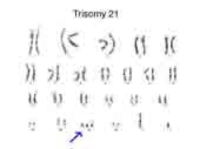 What Is a Karyotype?: A karyotype showing trisomy 21