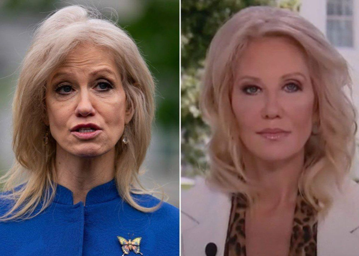 Kellyanne Conway Is Gorgeous After Glow Up Did She Have Plastic Surgery In 2020 Plastic Surgeon Sleep Hairstyles Conway