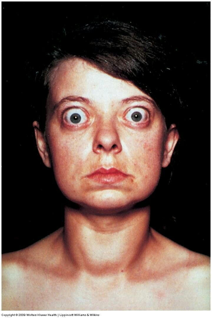 exophthalmos in graves disease when you cannot smile or cry your face is stuck