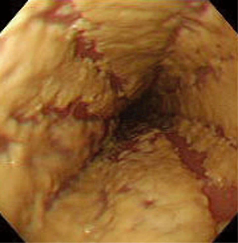 ACC診断と治療ハンドブック|日和見疾患の診断・治療|口腔食道カンジダ症