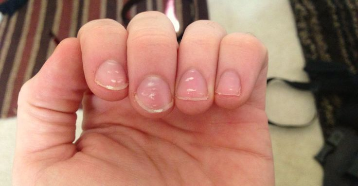 These Bodily Signs Can Warn You About Nutritional Deficiencies Nail Health Signs White Spots On Nails White Marks On Nails