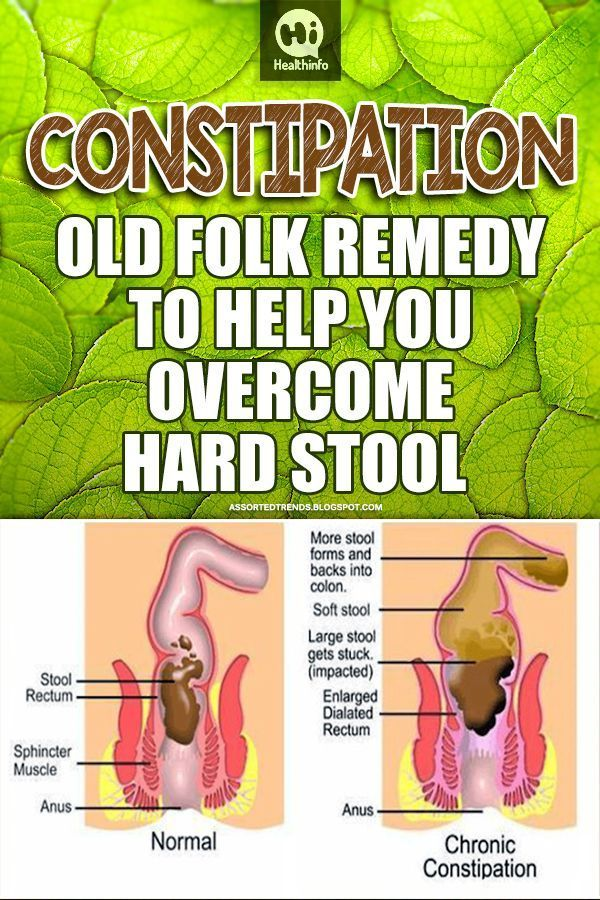 Pin on Constipation Remedies