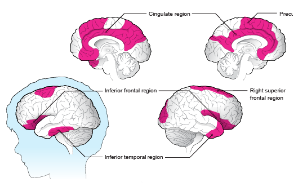 Poverty Linked To Brain Structure In >> This Is Your Brain On Poverty Data Visualizations Highlight The