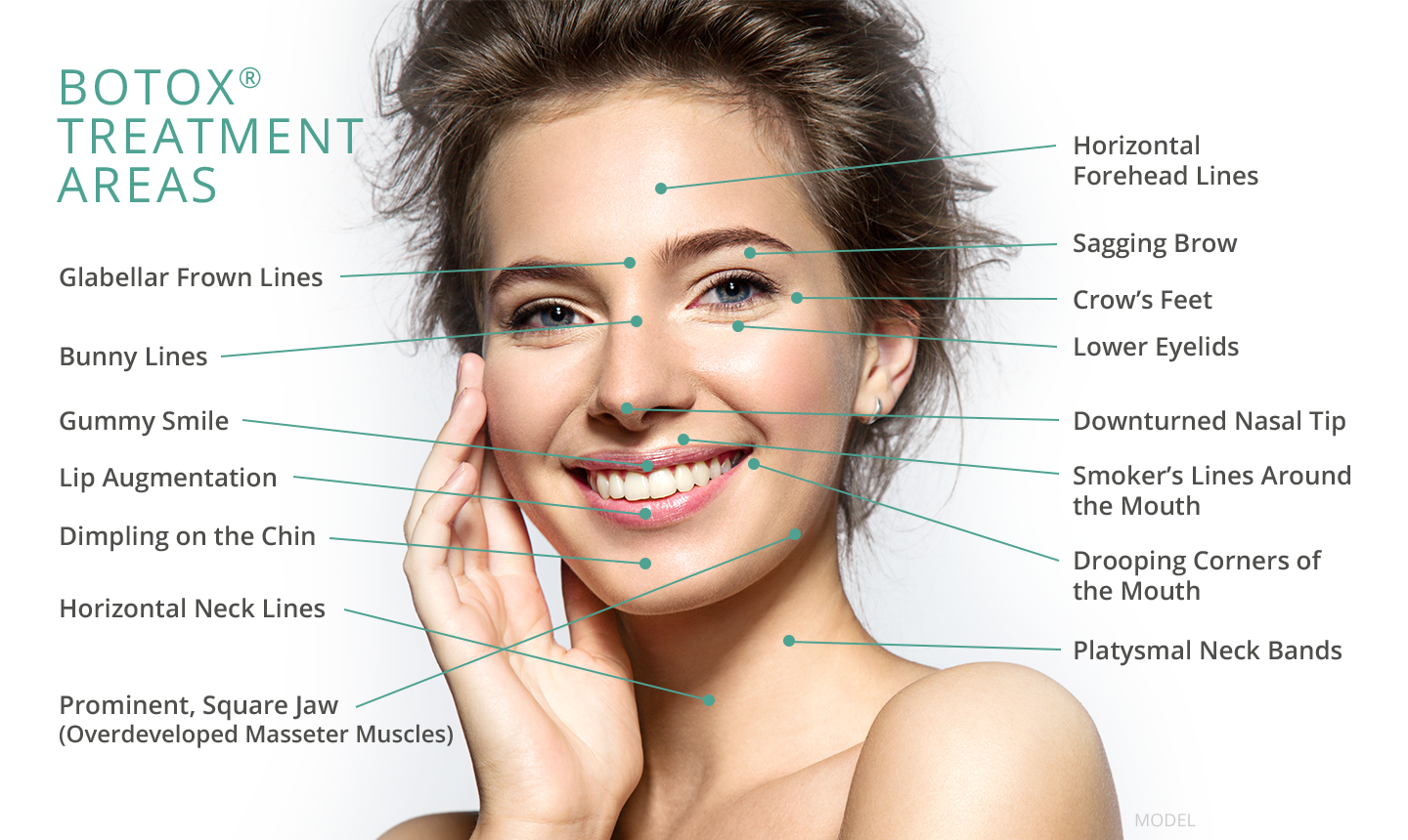 small resolution of image result for botox injection sites diagram