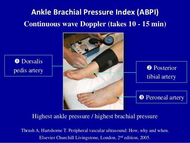 procedure of performing ankle brachial pressure index Effects of heart rate on brachial-ankle pulse wave velocity and ankle-brachial pressure index in patients without significant organic heart disease angiology  2007  58 :67–74.