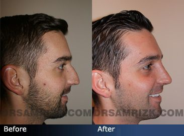 before and after photo of a 27 year old male patient who