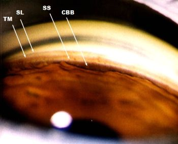 Actual Gonioscopy View Of Anterior Chamber Angle Eyes Pinterest