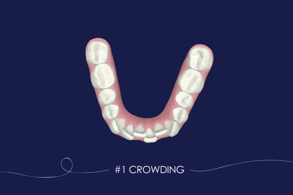 6 Types of Crooked Teeth & How to Fix Them (With images
