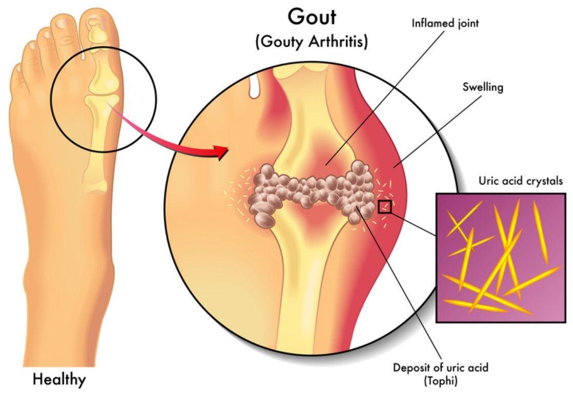 de ce durerea articulară?