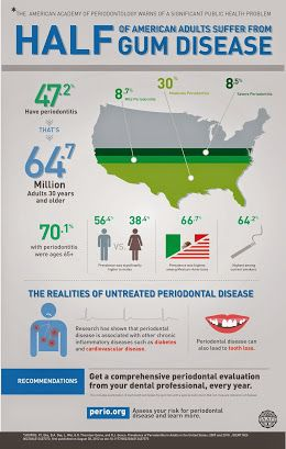 Didyouknow Half Of All American Adults Suffer From Gumdisease
