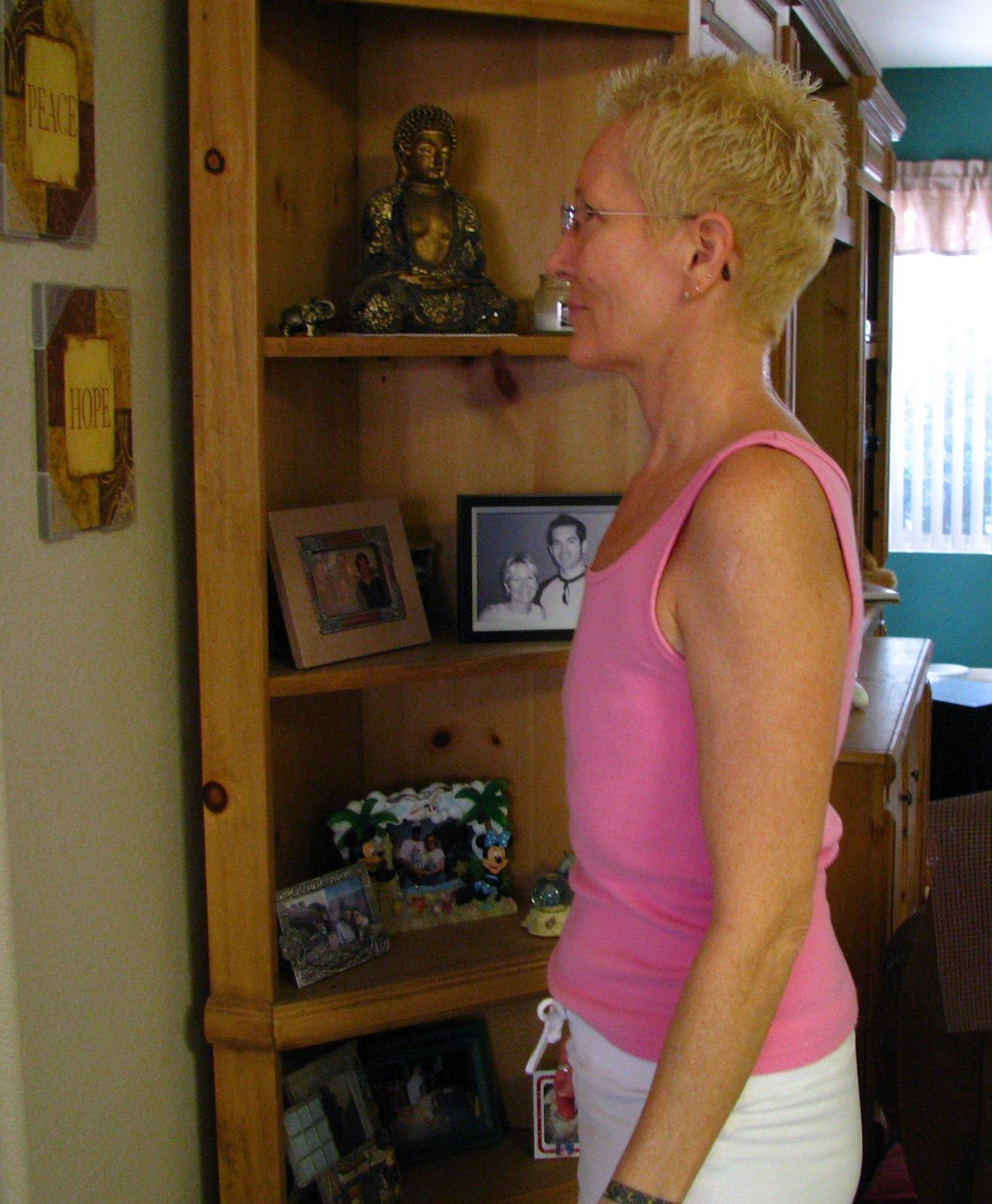 Mastectomy Photos Without Reconstruction