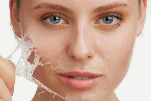 Cara Memperbaiki Muka Yang Rusak Akibat Jerawat
