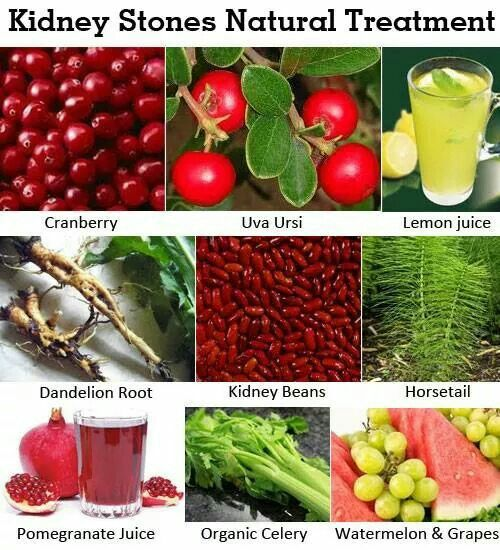 Kidney Stones Natural Remedies Natural Treatments Herbalism