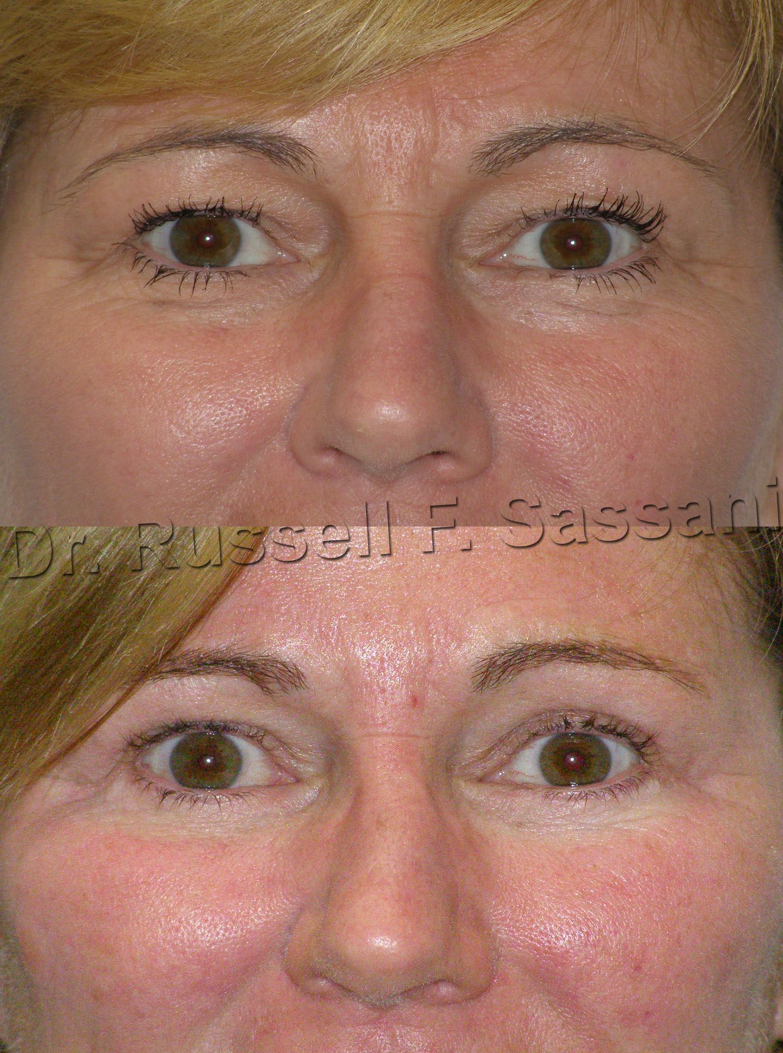 Before After Of A Eyelid Surgery Plasticsurgery Eyelid