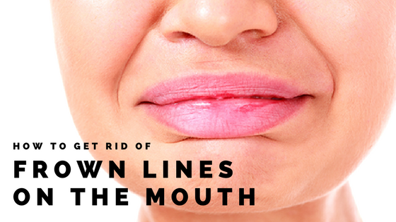 How To Get Rid Of Lines Around The Mouth Area