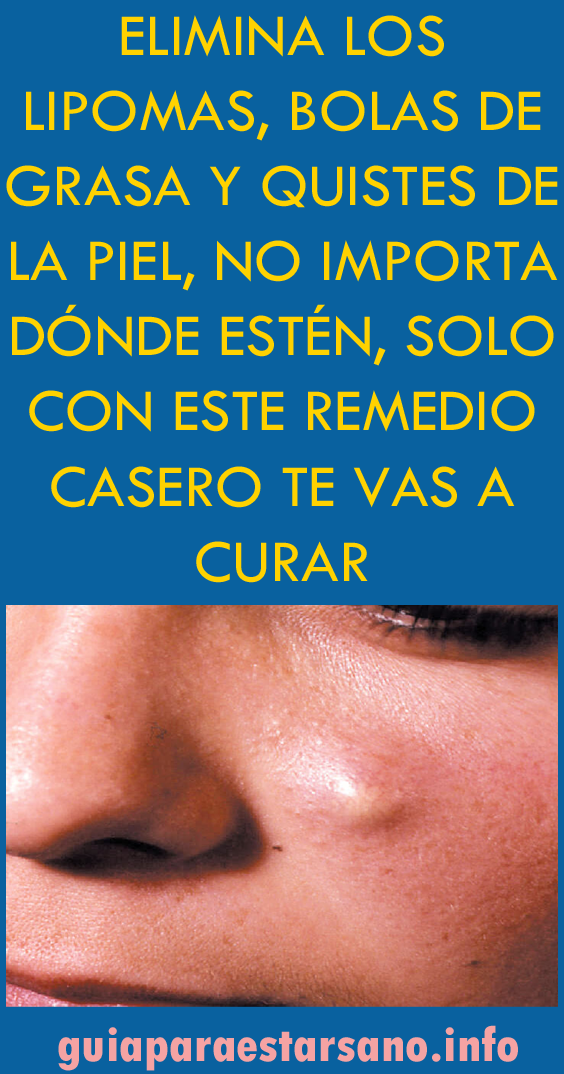 Elimina Los Lipomas Bolas De Grasa Y Quistes De La Piel No Importa Dónde Health Fitness Motivation Natural Medicine Health
