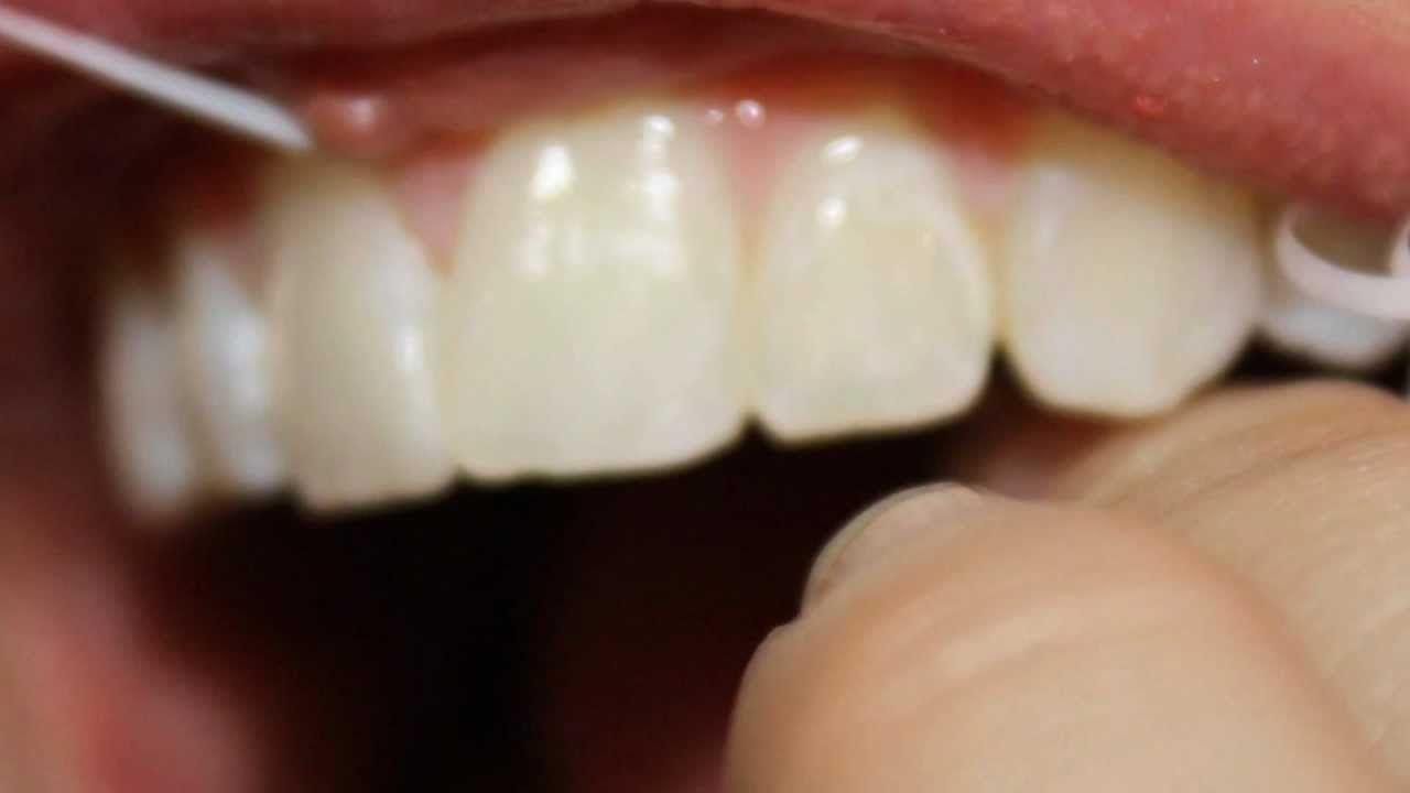 Get White Teeth getwhiteteethh on Pinterest