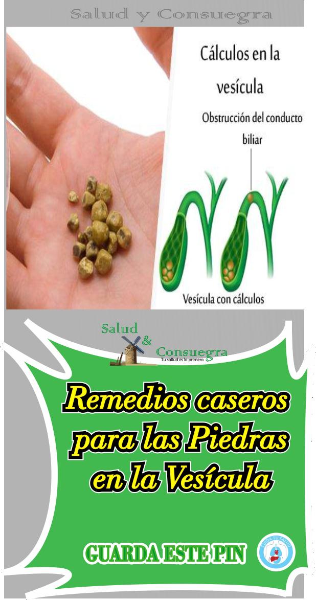 Remedios Caseros Para Las Piedras En La Vesicula Vesicula Remedios Remedios Caseros