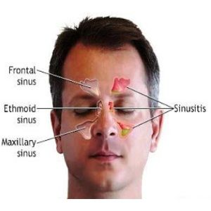 Natural Cure For Sinusitis - How To Treat Sinusitis Naturally | Home Remedies, Natural Remedy