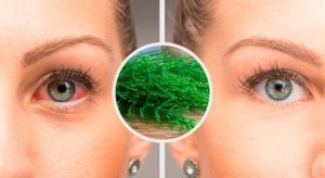 7 recommendations to combat conjunctivitis naturally  #beautytips  #fitness