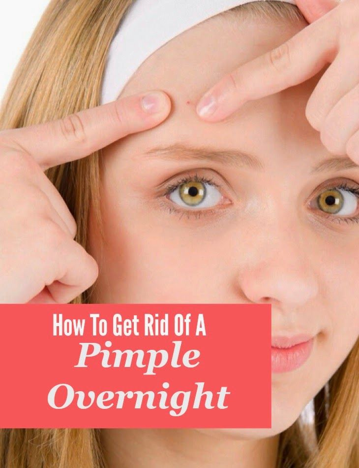 How to get rid of face acne overnight