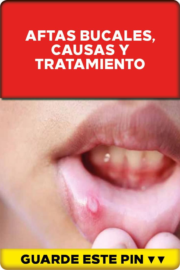 aftas en boca niños tratamiento