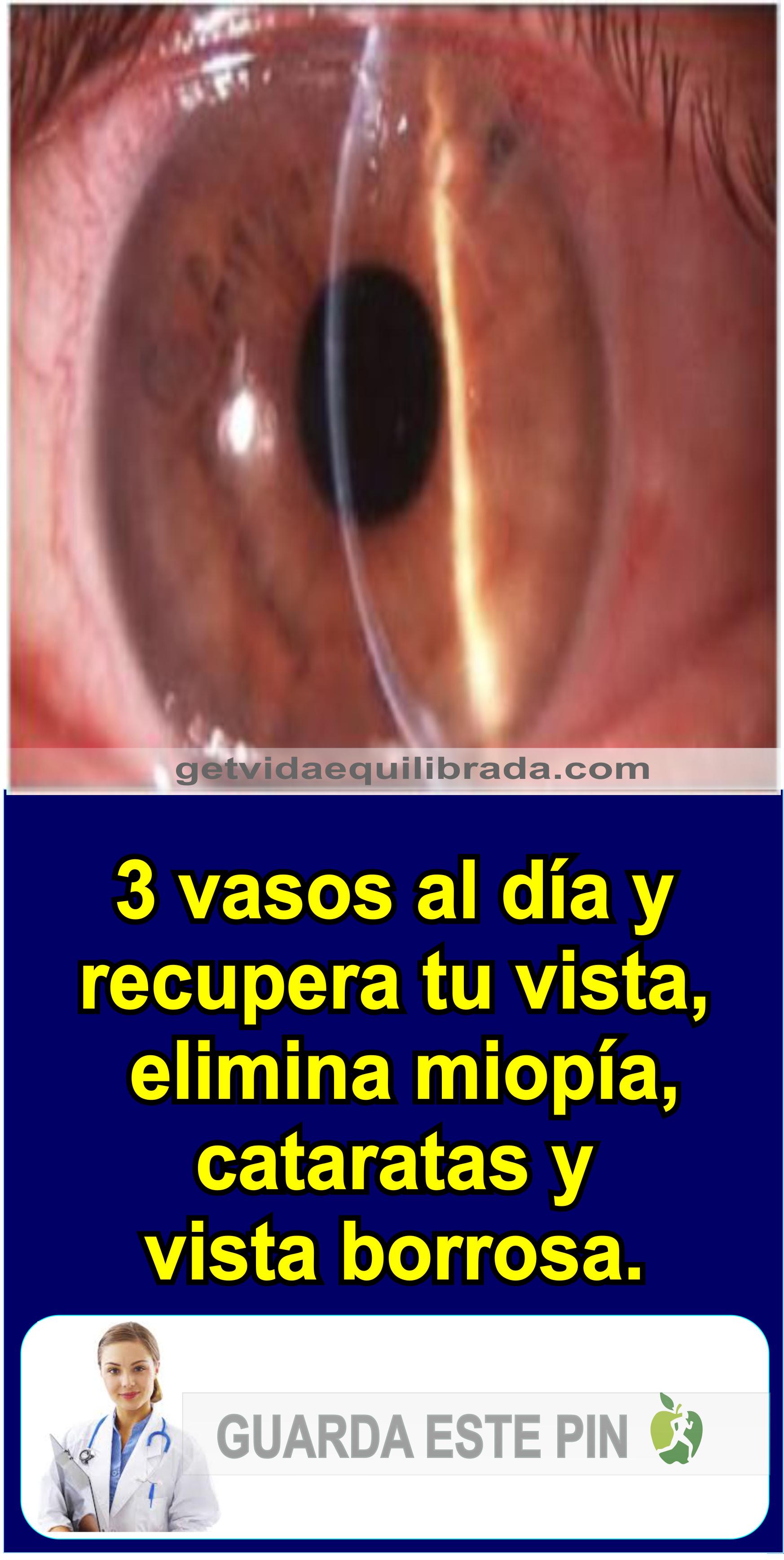 Miopia se poate vindeca natural – cu morcovi sau cu ochelari? Ce miopie poate fi restaurată