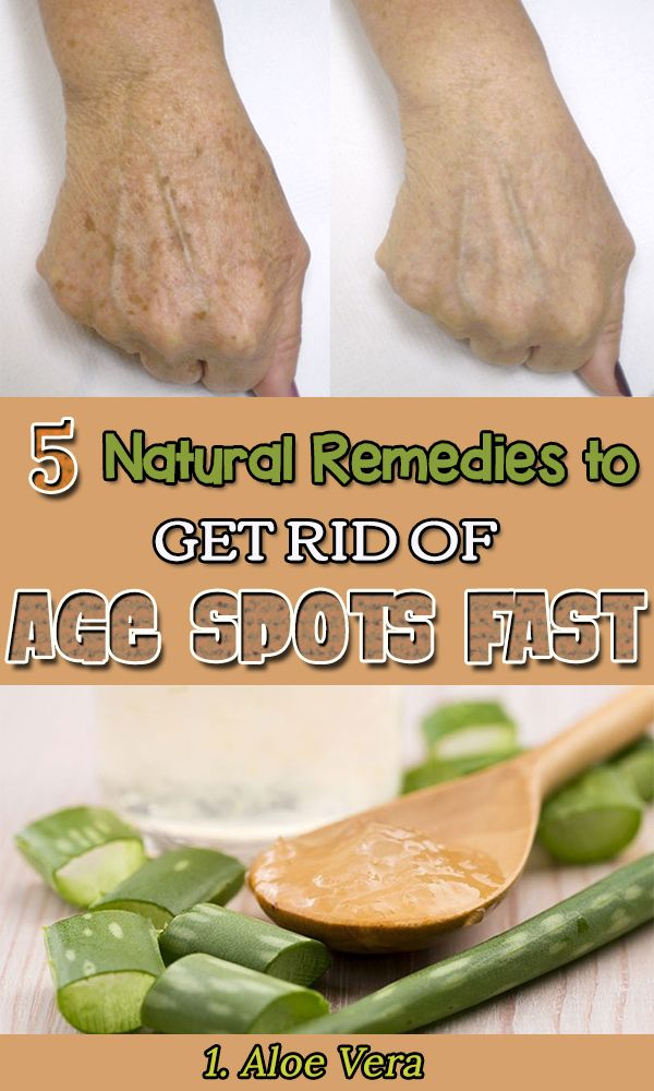 how to get rid of age spots on hands fast