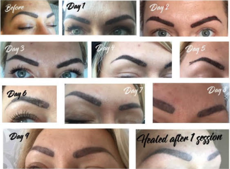 How to get rid of old failed eyebrows tattoo Eyebrow