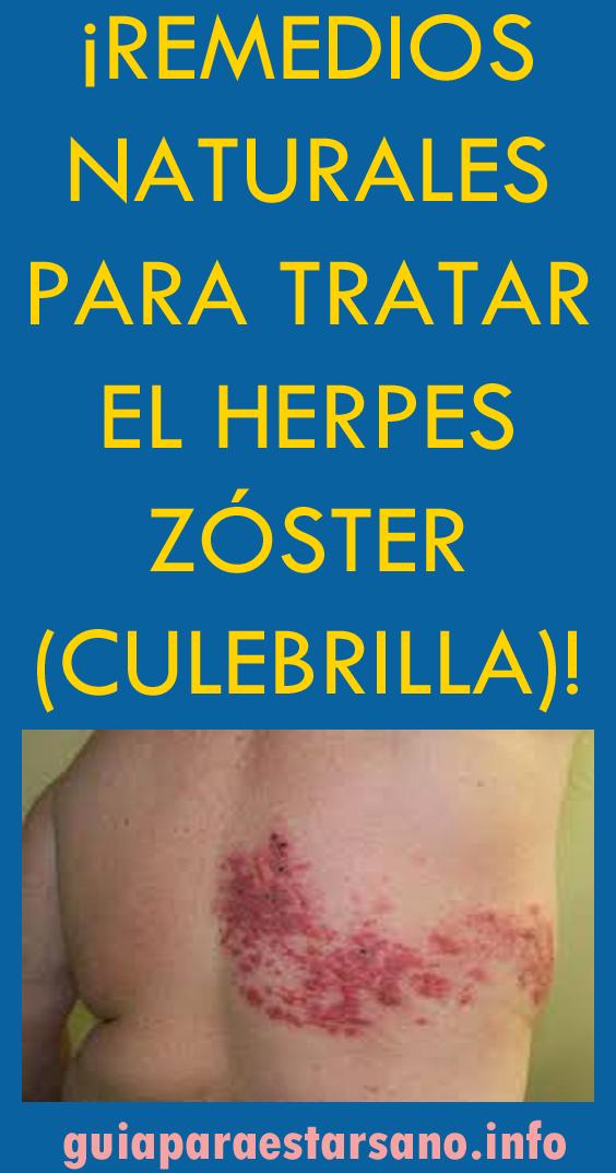 remedios caseros para el herpes zoster