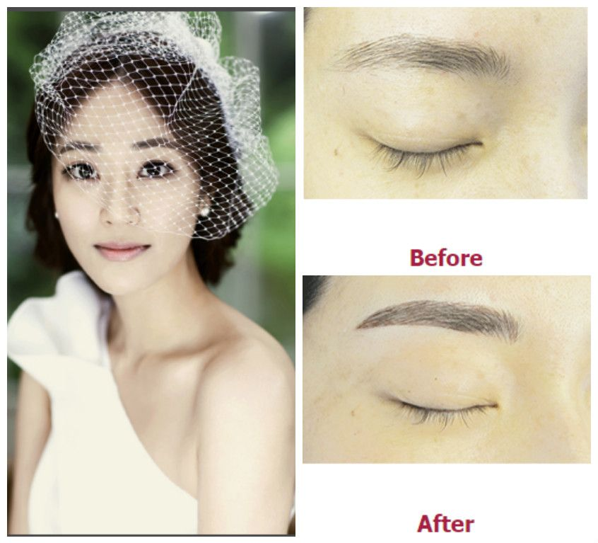 Eyebrow Embroidery In Korea Is The Best Option If You Want To
