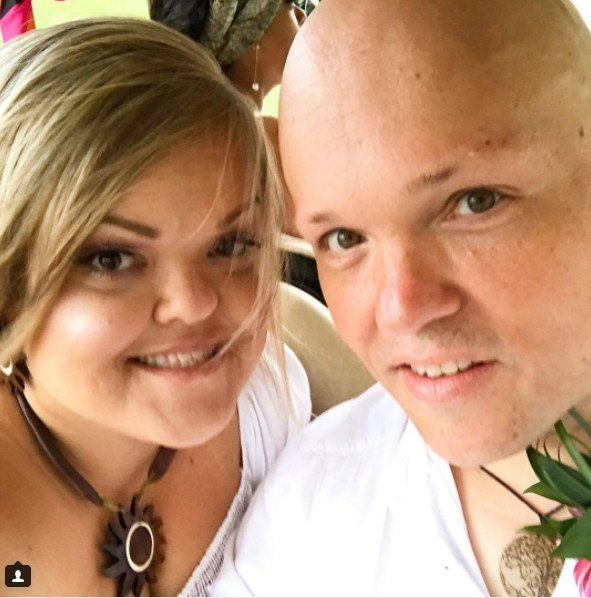 Little Women La Star Todd Gibel Weight Loss Surgery Success Story