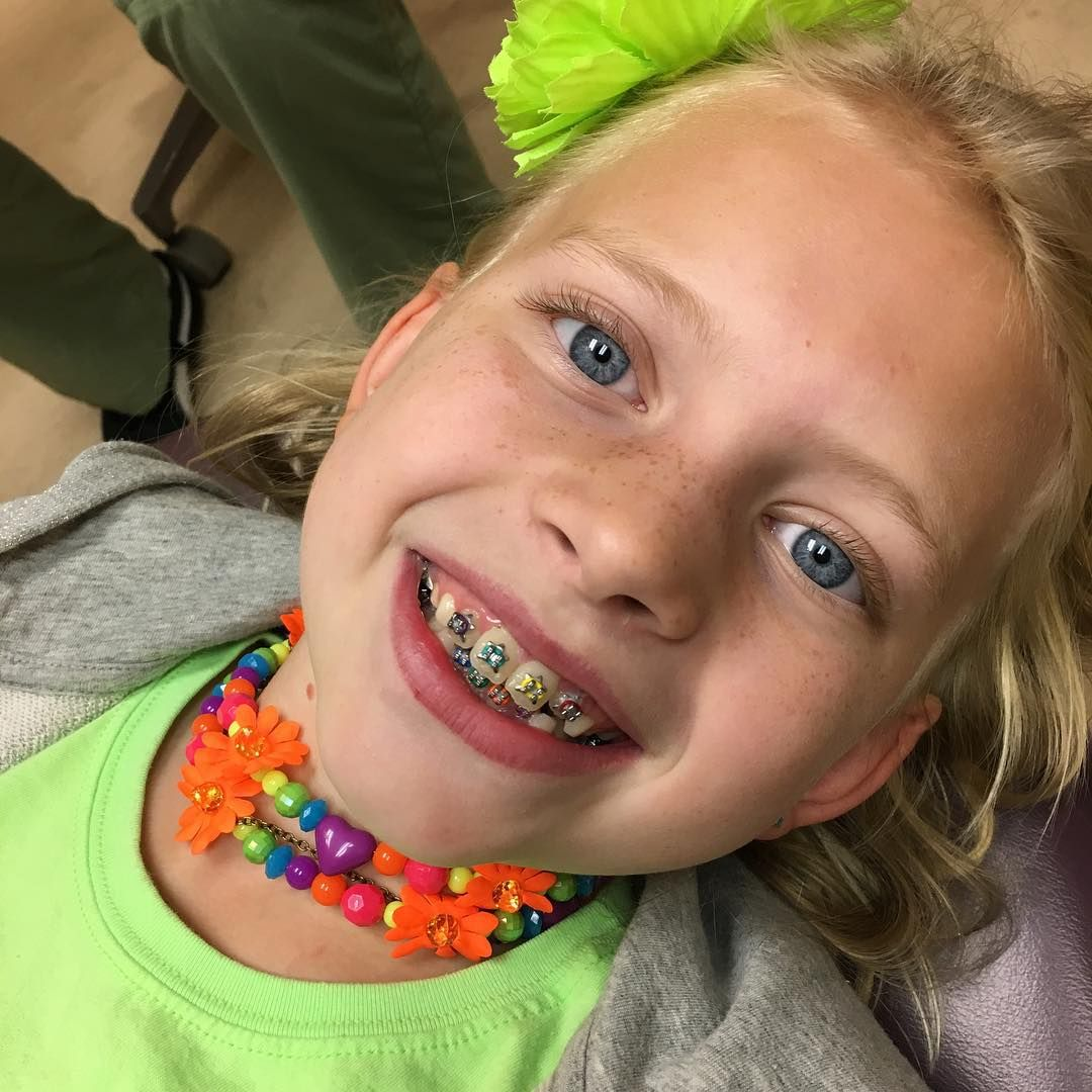New Braces Colors Rainbow Braces Alyssa Family Fun Pack Braces Colors Family Fun [ 1080 x 1080 Pixel ]