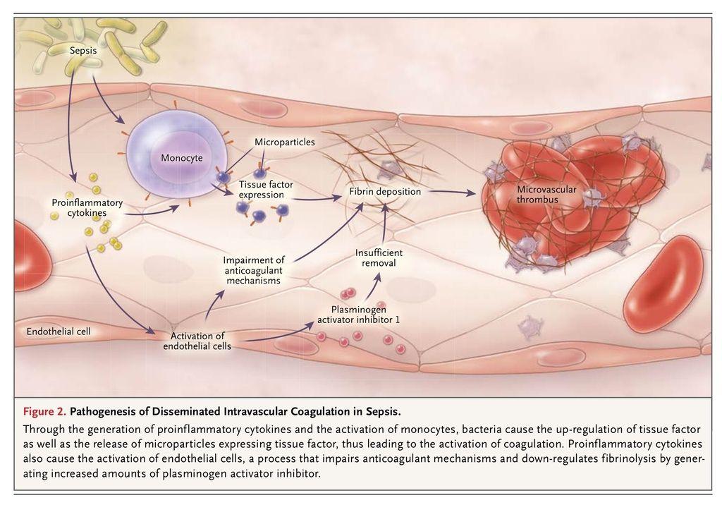 disseminerad intravasal koagulation