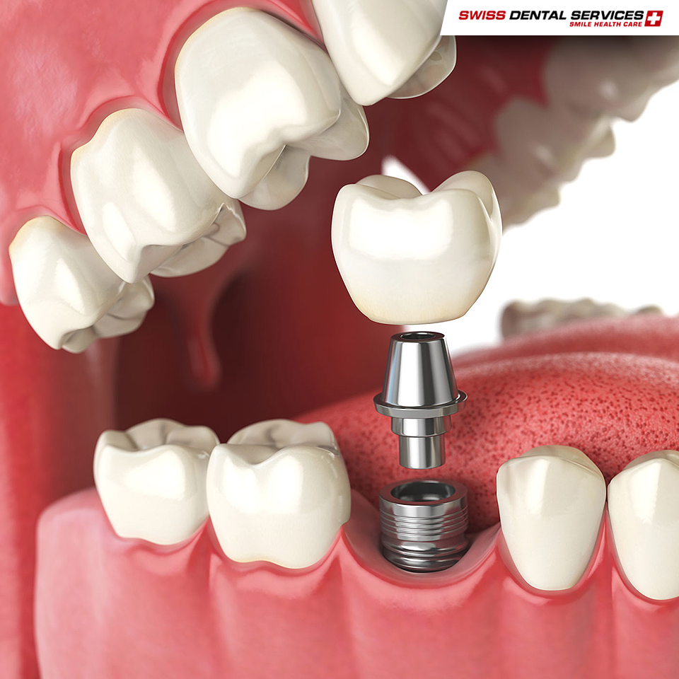 Saviez-vous que les implants dentaires peuvent durer 20 ans ou plus? -------------------------------------------- www.swissdentalservices.com/fr  #dentiste #implants #sourire #clinique (Pour plus d'informations ou pour organiser une consultation d'évaluation, envoyez vos coordonnées par message privé)