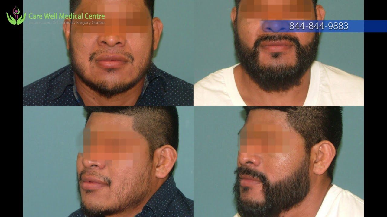 Beard Transplant In Delhi Consult By Dr Sandeep Bhasin Care Well Medi Beard Transplant Hair Loss Solutions Reduce Hair Loss