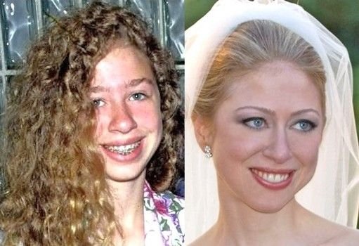 Chelsea Clinton is beautiful plastic cosmetic surgery before