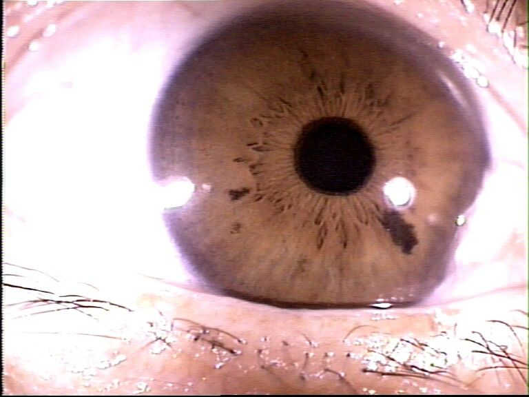 iridology Images, iridology Before and After, iridology Hazel, iridology Products, iridology Close Up, iridology Nutrition, iridology Maps, iridology Colon, iridology spots, iridology camera, iridology watches, iridology study, iridology articles, iridology search,