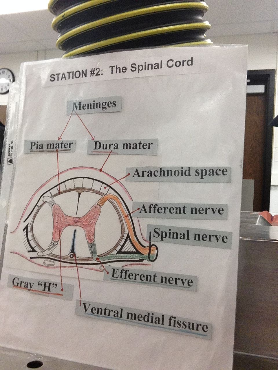 The Spinal Cord - the meninges are made up of two parts: ----the pia ...