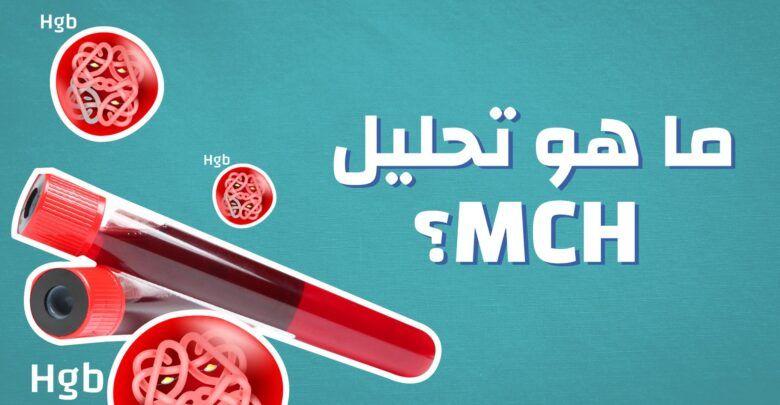 ما هو Mch في تحليل الدم وما هي الامراض التي ي ظهرها هذا التحليل