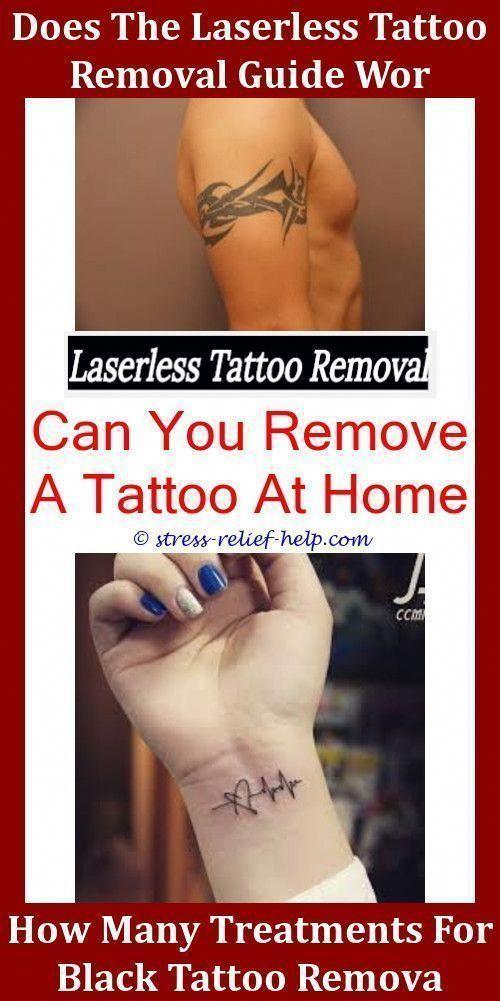 Scarless Tattoo Removal,tattoo machines laser tattoo removal ...