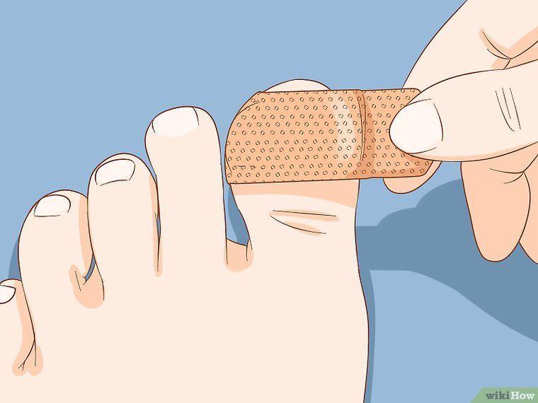 How To Help A Toenail Grow Back Quickly Toe Nails Broken Toenail Broken Nails
